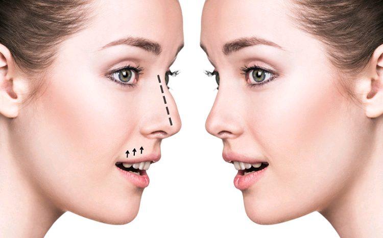 Rinoplastia com otorrino: cirurgia deve trabalhar a parte estética e funcional