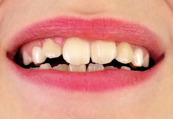 Dentes afastados ou mordida desigual? Pode ser maloclusão