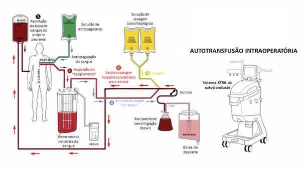 Autotransfusão é a forma mais segura para quem precisa de sangue durante cirurgia