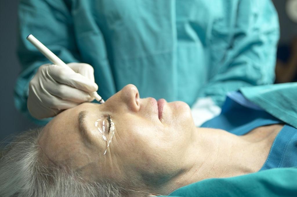 Blefaroplastia com Transposição de Gordura reduz rugas e transforma o olhar