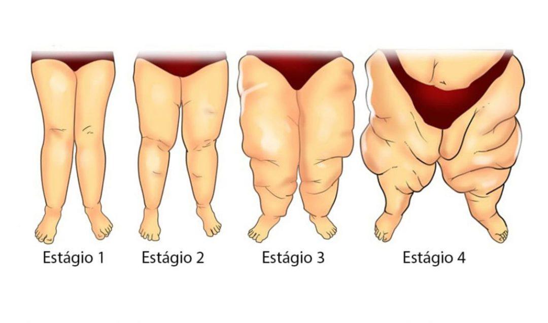 Acúmulo de gordura nas pernas e braços pode ser sinal de doença vascular