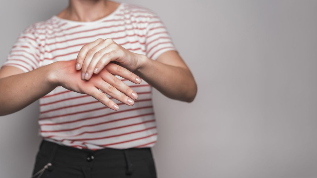 Mãos formigando? Pode ser síndrome do túnel do carpo