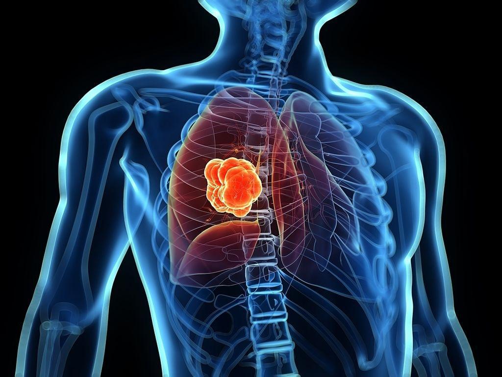 Esperança para quem tem câncer de pulmão